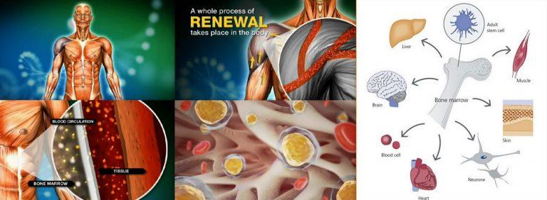 terapi stem cell di Indonesia