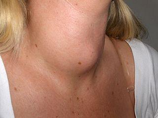 Ciri Gejala Hipertiroid